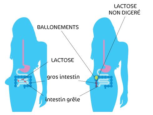 Intolérance versus allergie au lactose