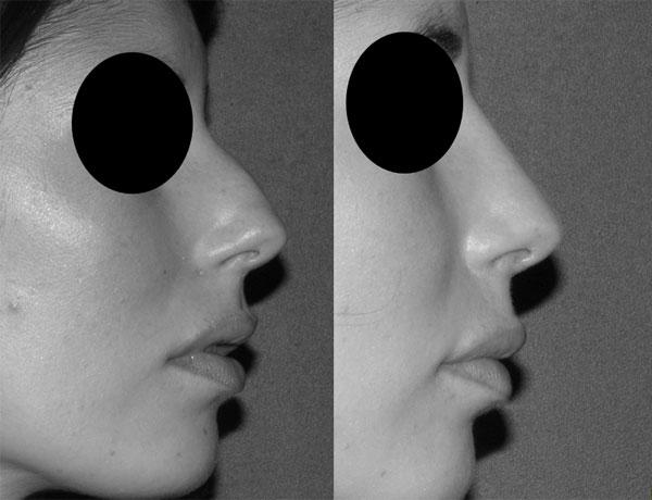 rhinoplastie-avant-apres