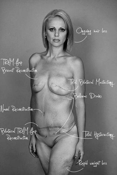 En 2013, Beth expose son corps nu et meurtri sur Facebook : une décharge électrique et un acte courageux pour aider les femmes atteintes d'un cancer !