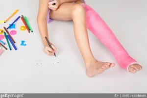 4 trucs et astuces à connaître pour vivre avec un plâtre